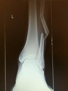 David's Broken Leg  X-ray